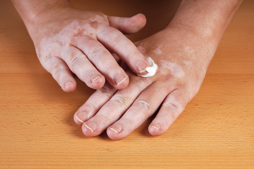 白斑は薬で治る